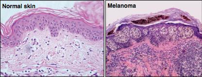 Skin:Melanoma